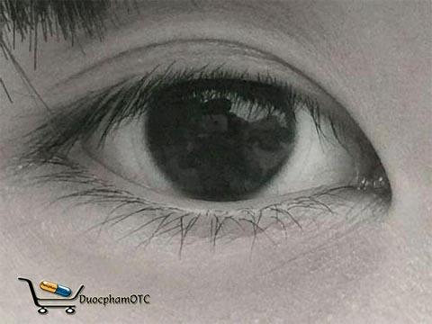 bệnh về mắt thường gặp hiện nay
