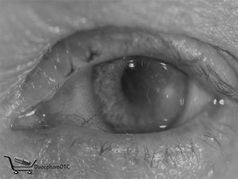 bệnh về mắt thường gặp